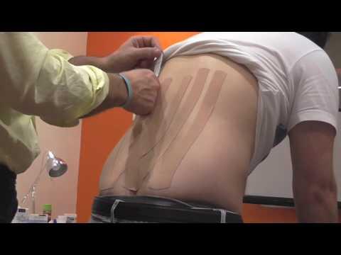 Come trattare il mal di schiena la tosse