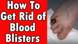 How To Get Rid of Blood Blisters [7 Home Remedies]