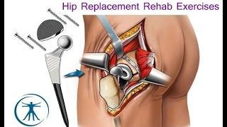 Hip Replacement Basic Rehabilitation Exercises