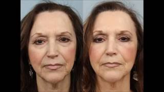 Female Upper & Lower Lid Blepharoplasty by Dr. Edwin Williams