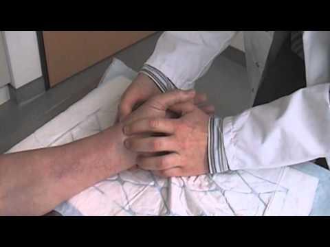 Comme contrôler les veines à la varicosité
