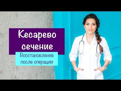 КЕСАРЕВО СЕЧЕНИЕ. Восстановление после операции   Карина Грек