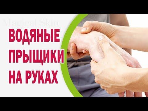 Препараты интерферонов для лечения гепатитов