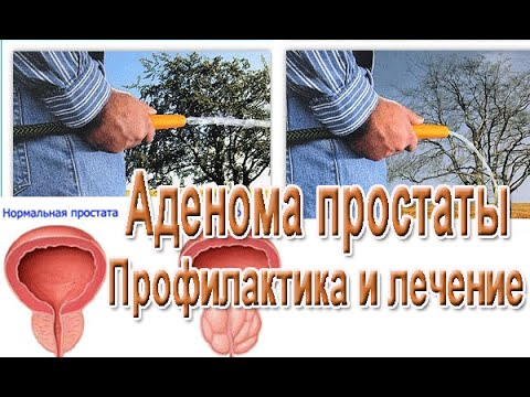 Лечение при аденоме простаты болиголовом