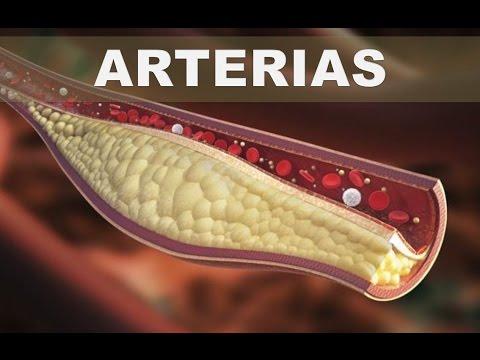 Se puede beber el aceite de pescado en pacientes con diabetes mellitus tipo 2