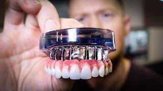 DENTURES vs Dental IMPLANTS Full Mouth Rehabilitation - See the Smile Transformation!