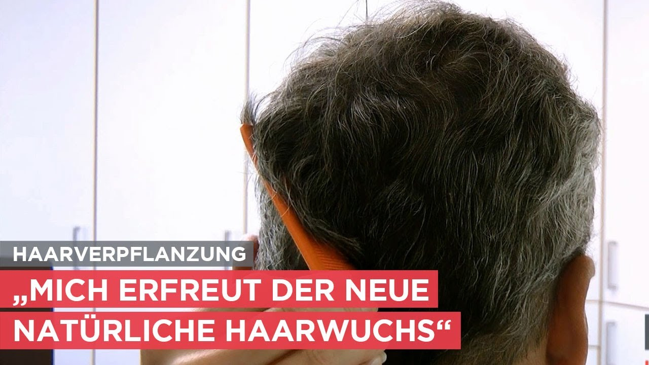 Haartransplantation am Oberkopf - Patient im Interview