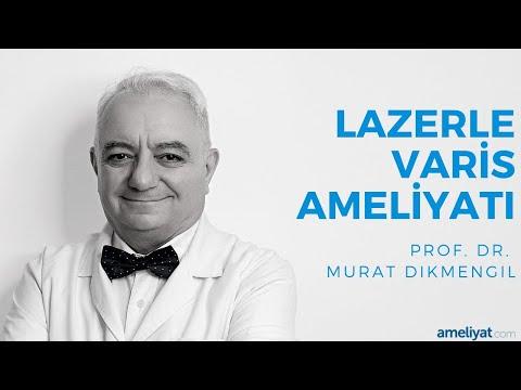 Lazerle Varis Ameliyatı (Prof. Dr. Murat Dikmengil)