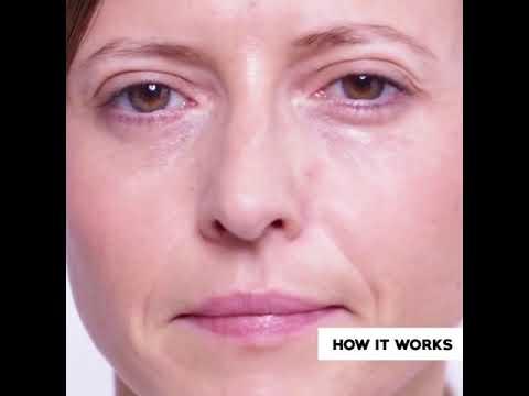 Υπεροξειδίου από υπέρταση