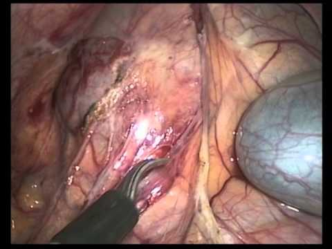Single Incision Laparoscopic Proctocolectomy