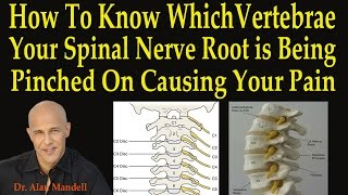 How to Know Which Vertebrae Your Spinal Nerve Root is Being Pinched On Causing Your Pain