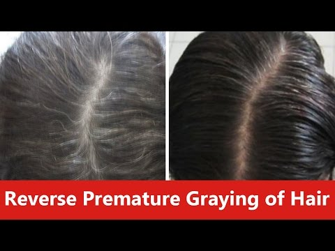 Das Männershampoo vom Haarausfall alerana