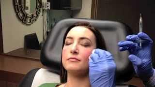 Juvederm VOLUMA Instant Cheek Augmentation in Chevy Chase, MD – Dr. Naderi