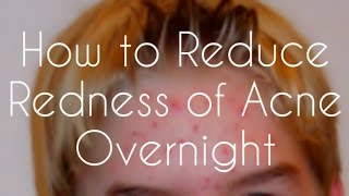 How to Reduce Redness of Acne Overnight