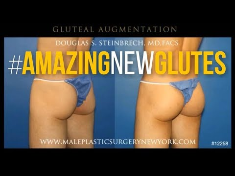 Male Gluteal Augmentation in NYC