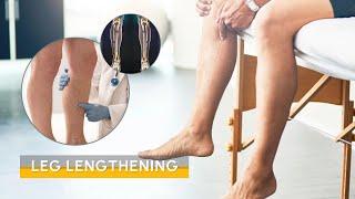 Video Limb lengthening