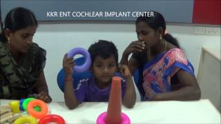 1st Month After Cochlear Implant- Detection Of Ling-6 Sounds