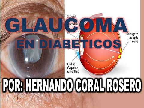 Cura insulino-dipendente diabete mellito
