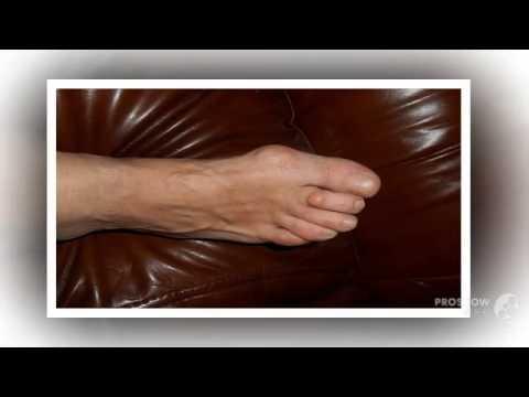 Между пальцами на ногах появились шишки