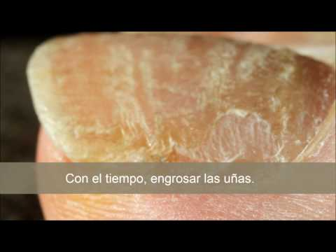 Los preparados del hongo de las uñas en las manos las revocaciones