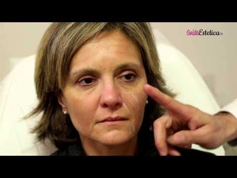 La palpebra più bassa Botox è caduta