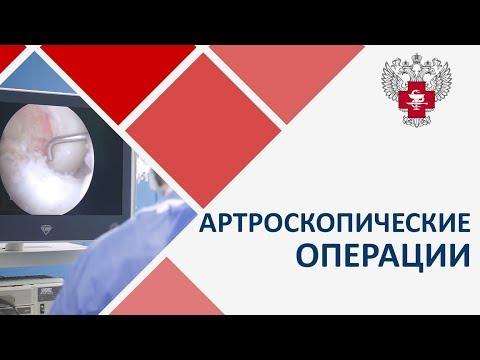 Артроскопия. 🎥 Что такое артроскопические операции. Пироговский Центр.
