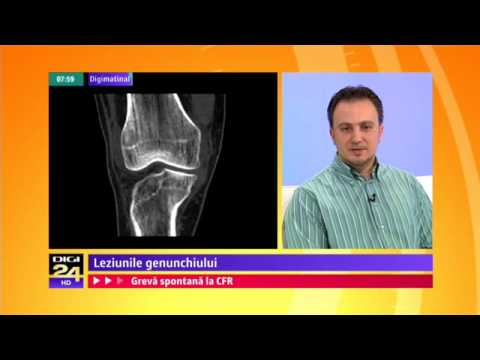 Unguent articular pentru dureri de genunchi
