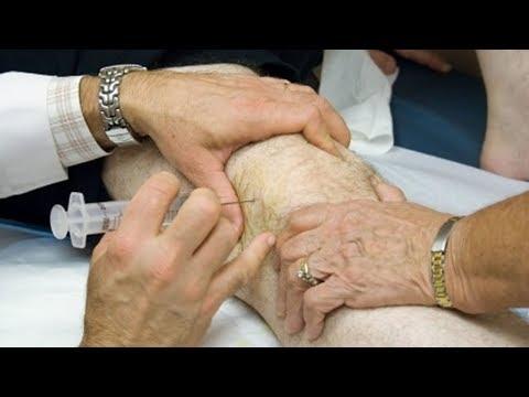 Que para aliviar el dolor en la columna vertebral en la osteocondrosis