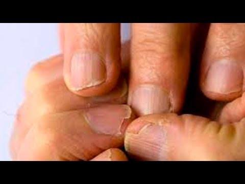 Los ungüentos de los hongos sobre los dedos de los pies