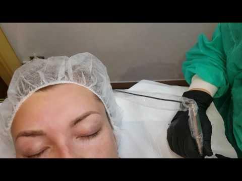 Frazione di asd 2 applicazione per la persona a eczema