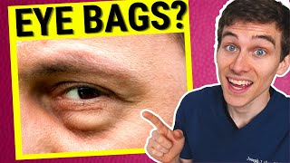 Eye Doctor Explains How to Get Rid of Under EYE BAGS