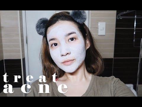 Isang mask para sa mga spot edad