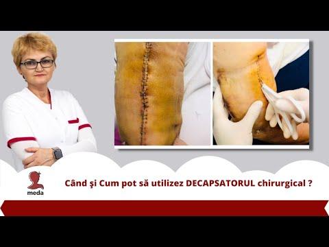 Recenzii de tratament cu artroză donoy