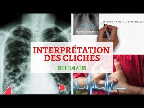Coeur dans lhypertension