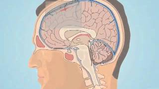 Understanding Subarachnoid Hemorrhage