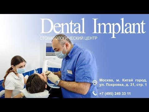 СТОМАТОЛОГИЧЕСКИЙ ЦЕНТР | Dental Implant | Москва