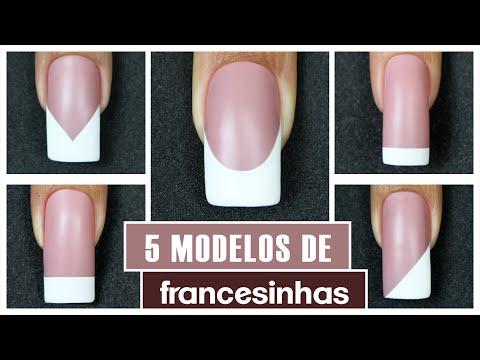 5 Francesinhas Lindas