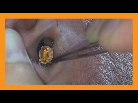 My Hearing Aid Got Stuck! | Auburn Medical Group