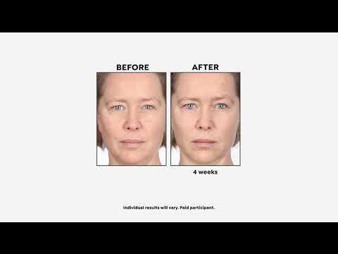 M.ASAM Vinolift Skin Tightening Cream