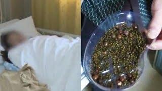 Melewatkan Sarapan dan Jarang Minum Air Putih, Seorang Wanita Memiliki 2.000 Batu Empedu di Badannya