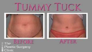 Ontario & Toronto - Tummy Tuck (Abdominoplasty) at The Plastic Surgery Clinic