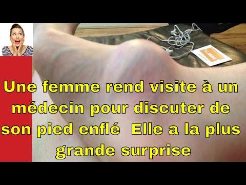 La varicosité le pyrosis dans le pied