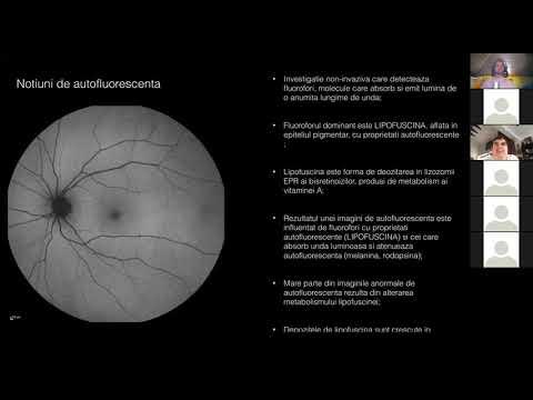 Medicina tradițională în tratamentul miopiei la copii