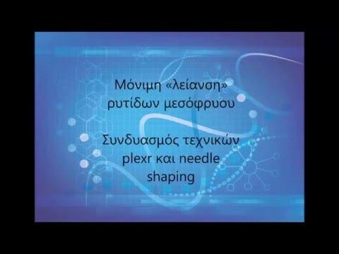 Συνδυασμός τεχνικών plexr και needle shaping, Μόνιμη «λείανση» ρυτίδων μεσόφρυου, Κάτια Χάιτα