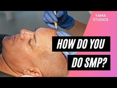 How Do You Do Scalp Micropigmentation?