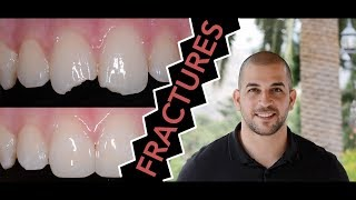 How to Repair a Broken Tooth with Dentist Filling (Dentist)