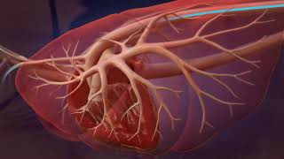Heartworm Life Cycle for Professionals