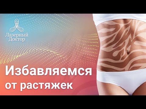 Как убрать жир со спины в области лопаток