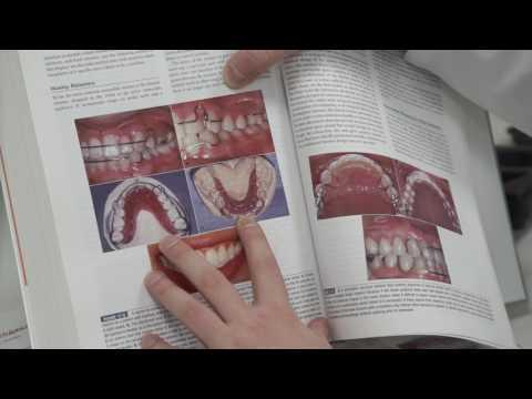 Виды ретейнеров. Как сделать зубы стабильными после брекетов? Часть 2