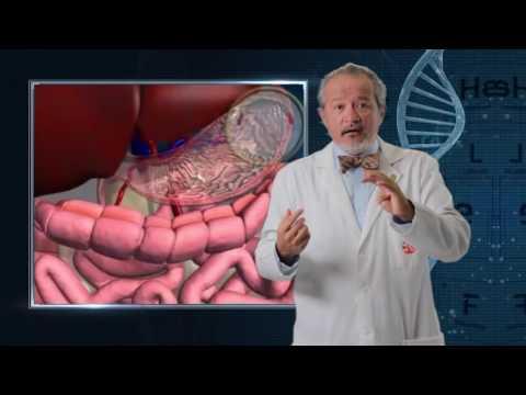 Tratamiento de la diabetes de corcho de Amur